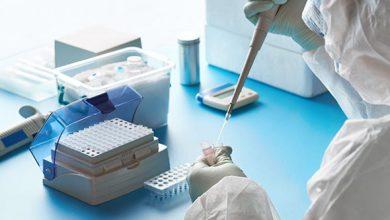 Photo of Laboratorio Clínico del Hospital de Temuco retoma análisis de muestras de PCR para Covid-19