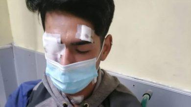 Photo of Familia y Comunidades de Alianza Wenteche reclaman discriminación en atención médica hacia el joven de 18 años quien sufrió trauma ocular el fin de semana en Nueva Imperial