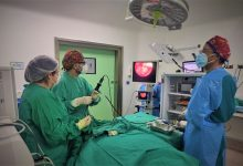 Photo of Procedimiento endoscópico logra remover exitosamente tumor benigno en paciente de riesgo